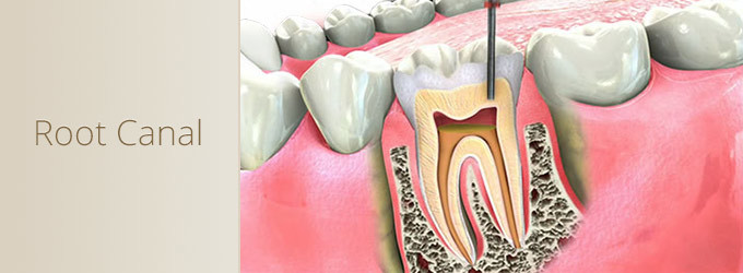 Read full story «Root Canal»